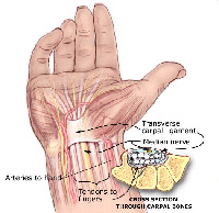 Carpal Tunnel Syndrome - Natural Beauty Tips
